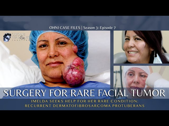 Surgery to Remove a Large Facial Tumor | Dermatofibrosarcoma Protuberans (DFSP)