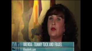 Brenda had Cosmetic Surgery Performed in Louisiana by Dr. Khoobehi
