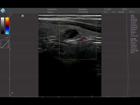 nodulo prostatico ipoecogeno ben definiton