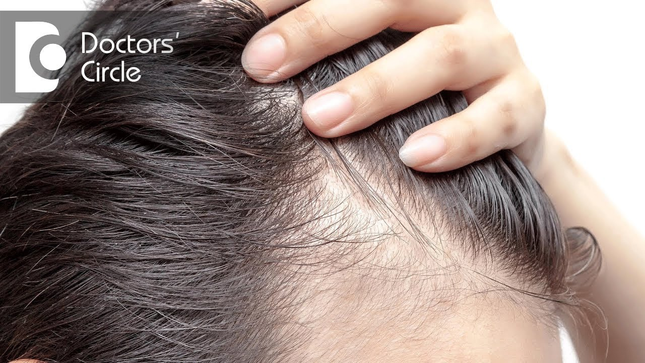 What causes hair loss in teenagers when parents have good ... - photo#44
