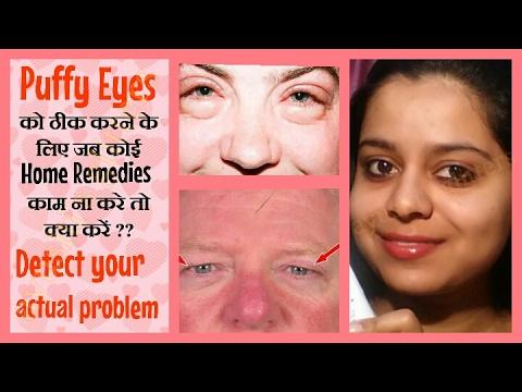 आँखों के पास सूजन कैसे ठीक करें |  How to cure puffy eyes and sagging eyelids