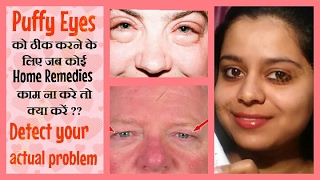 hi my dear friends, today i have this video for u about puffy eyes ...