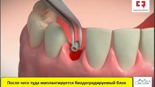 Удаление зуба и профилактика деформации костной ткани челюсти после экстракции зуба(, 2017-02-04T18:26:24.000Z)