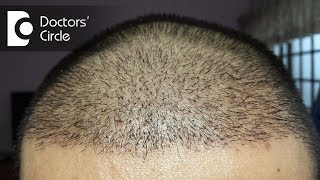 Обложка How Long Does It Take For Hair To Grow After A Hair Transplant Dr Madan Kumar BJ