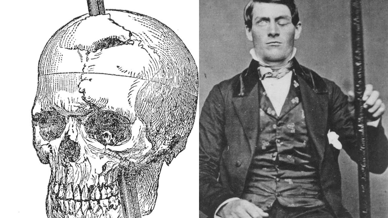 phineas t. gage