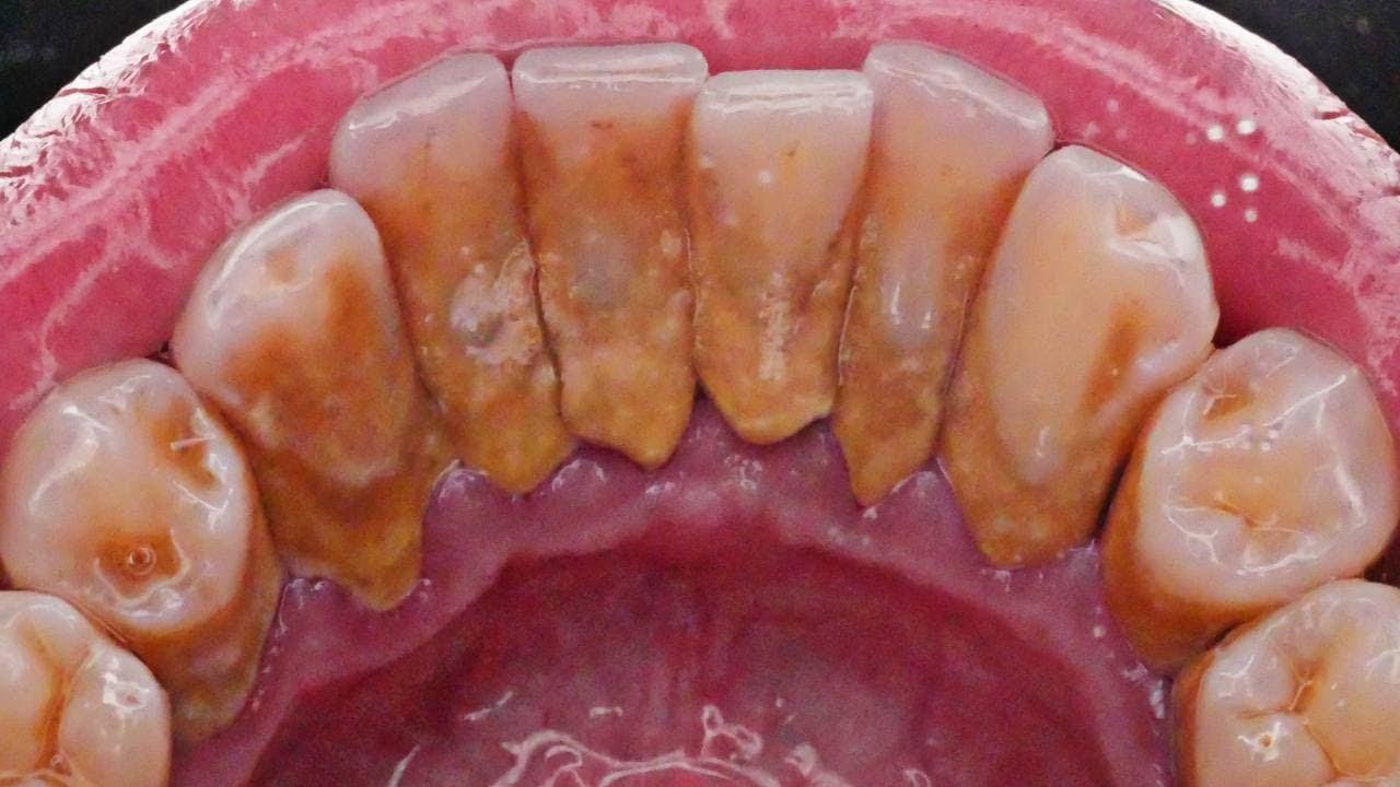 BEFORE AFTER SCALING | Dentist | Dokter Gigi Tri Putra