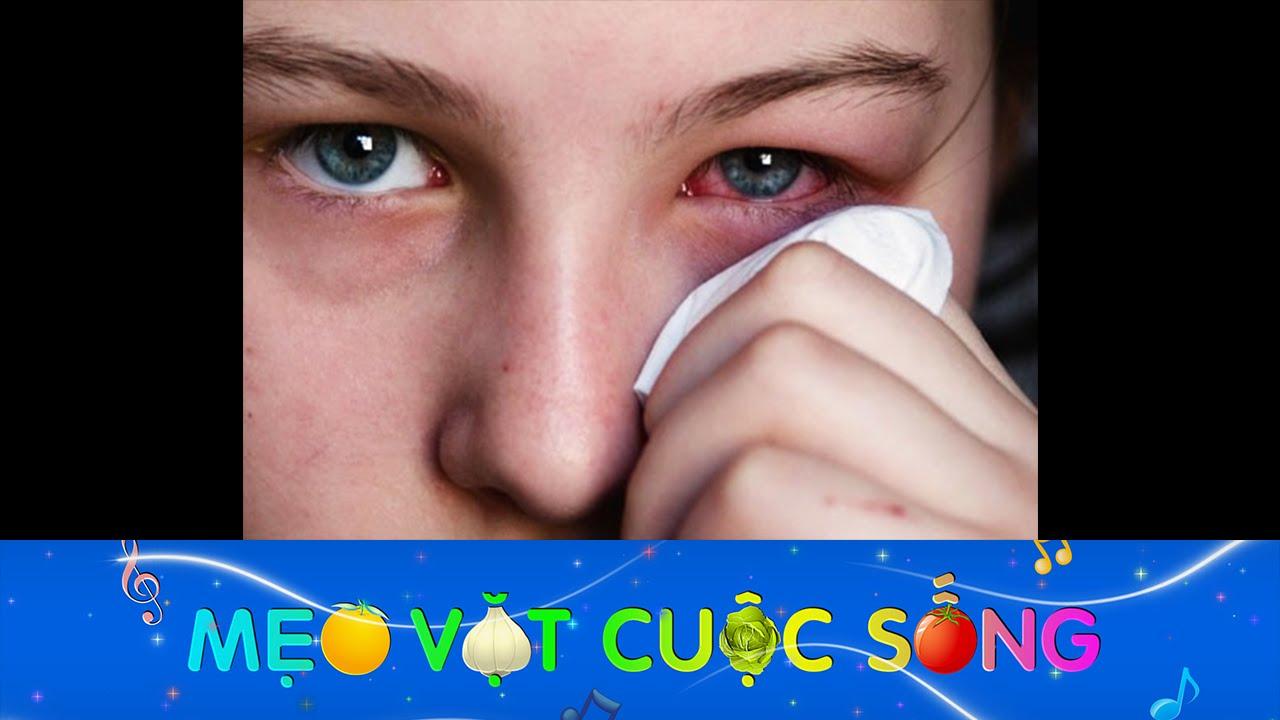 Tuyệt chiêu trị đau mắt đỏ cực hiệu quả