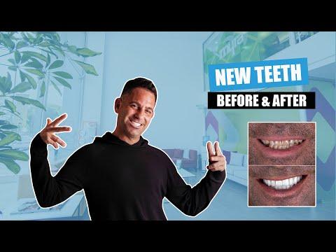 New Teeth in Turkey 2021 | Dental Implants and Veneers Before & After