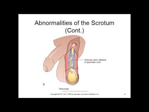 Pathophysiology lectures Chapter 19 Reproductive system disorders F2016