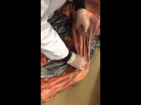 Equine front limb anatomy - YouTube