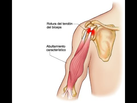 Tendón largo del biceps- Localización - YouTube