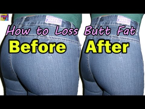 Exercise to Reduce Buttocks | How to Reduce Butt Fat
