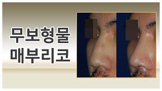 남자의 코성형 - 무보형물 매부리코 feat.전후사진(…