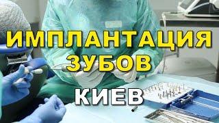 Имплантация зубов Киев отзывы цена (видео)(, 2016-02-16T22:39:47.000Z)