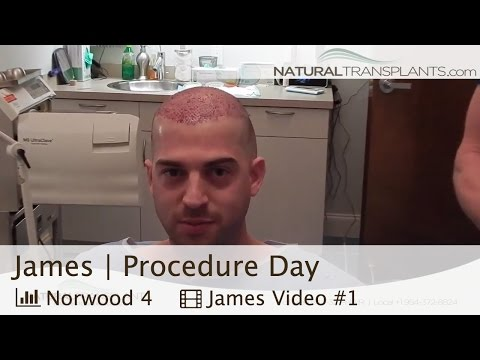 Hair Transplant Patient Experience - Boca Raton Hair Loss Experts (James)