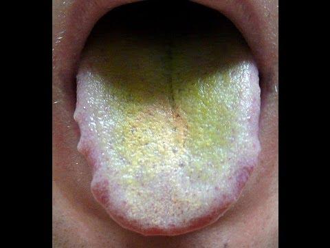 Желтый налет на языке – причины, симптомы и лечение