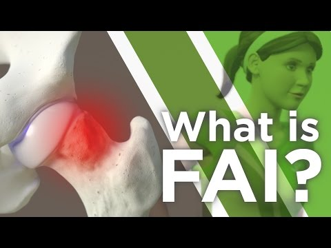 What is FAI?