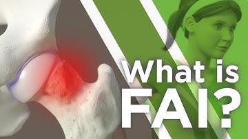 What is FAI?