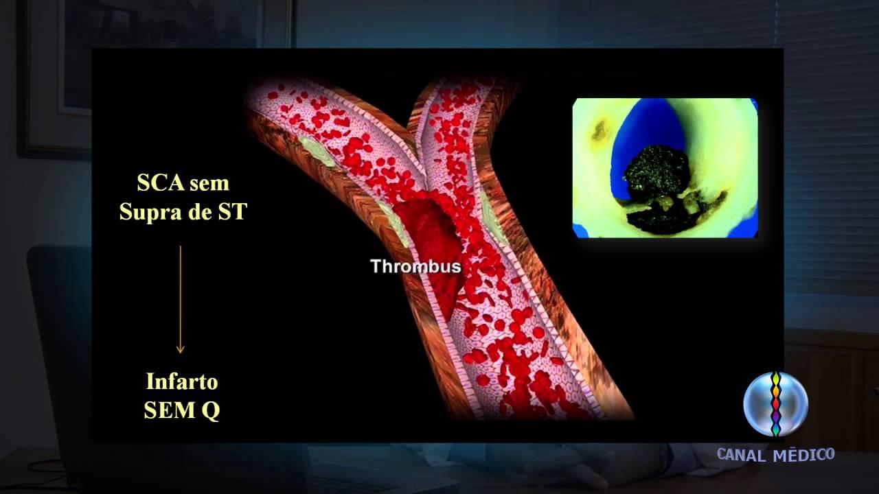 infarto agudo do miocardio fisiopatologia