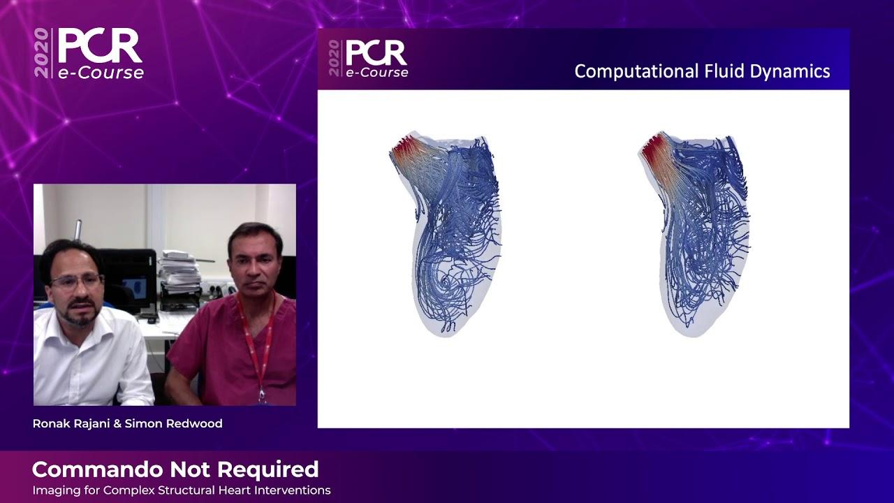PCR e-Course 2020 - Complex structural heart interventions