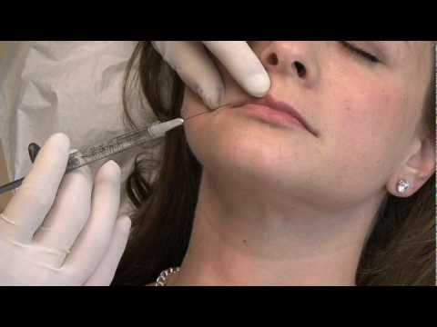 Lip Augmentation by Dr. Phillip Chang at Aesthetica