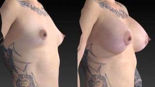 Breast Enhancement 3D Before and After-50