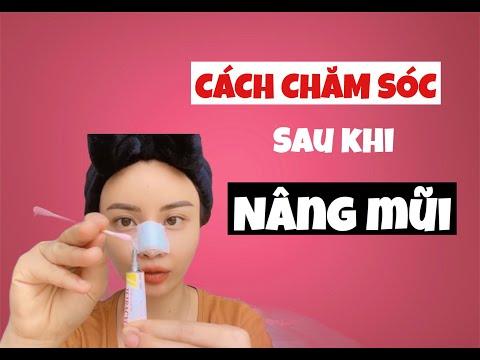 CÁCH CHĂM SÓC SAU KHI NÂNG MŨI | Phau Thuat Tham My Han Quoc TIPS | Rin Nguyen