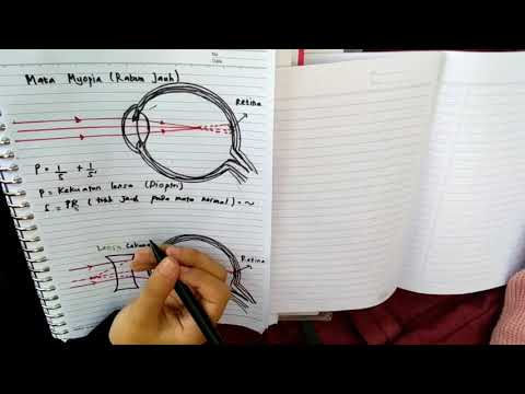 PEMBENTUKAN BAYANGAN PADA MATA MIOPIA(RABUN JAUH) /ARO HAKLI SEMARANG - Fisika Optik