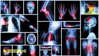 Fibromyalgie – Schmerzen am ganzen Körper