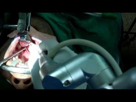 Why Remove Tonsils In Adults ? Dr Paulose FRCS (ENT)