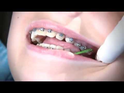 วิธีการเกี่ยวยางจัดฟัน