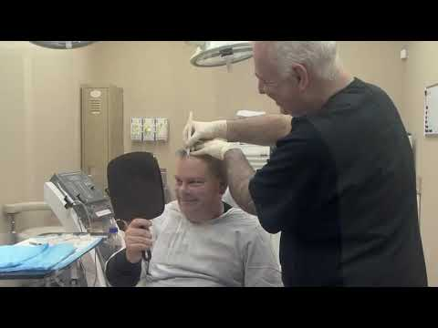 Restoring Your Hairline with Dr  Michael Vories of Carolina Hair Surgery   Charlotte, NC