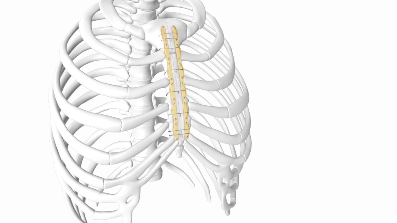 Longitudinal Sternal Stabilization (LSS) by KLS Martin - YouTube