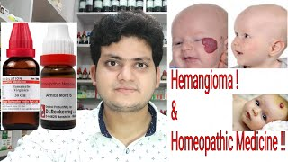 Hemangioma ! Homeopathic medicine for Hemangioma ? explain !