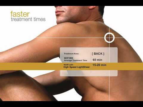 Laser Hair Removal with the Lightsheer Duet at Laser Clinique