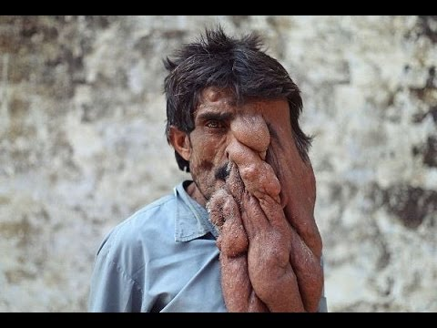 man has huge tumor growing on his face the elephant man youtube