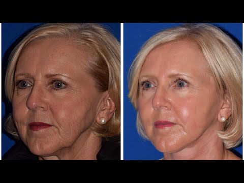 Facelift & Laser Skin Resurfacing Patient Testimonial