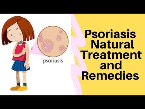 Treat Psoriasis with Ayurveda | Smita Naram | Ayushakti Ayurveda