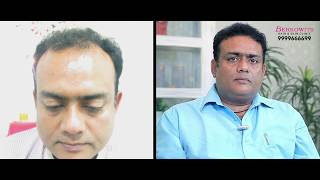 Hair Transplant Patient Review – Mr. Nitin Hair Transplant in Delhi At Berkowits