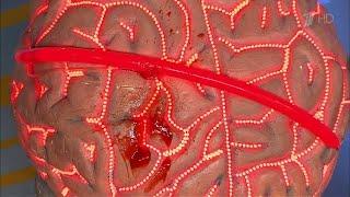 видео Как диагностировать сотрясение мозга, симптомы, и лечение