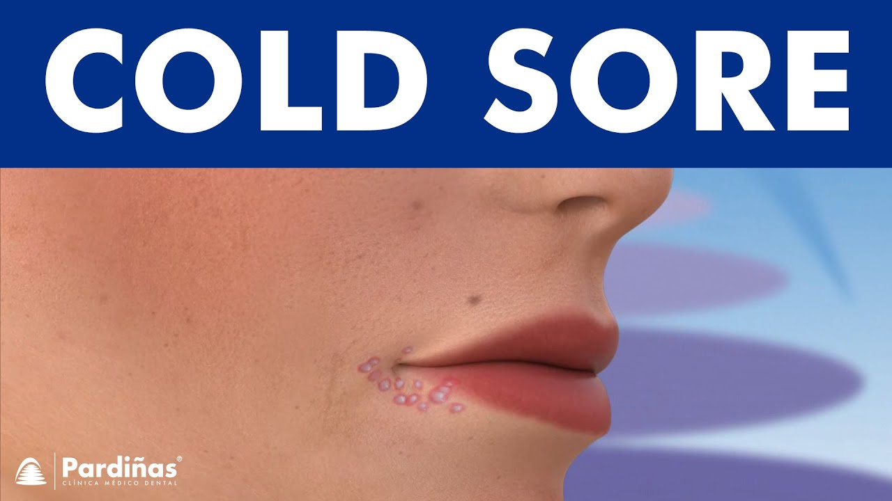 COLD SORES   Causes and symptoms of herpes on lip  8K