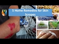 5 Home Remedies for Skin Scrapes