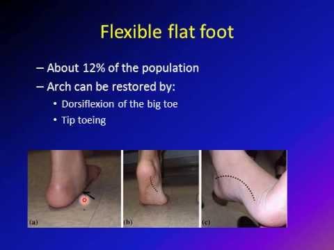 Flat Foot Pes Planus Vulgus Foot Youtube