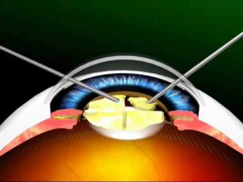 Download ECCE and MSICS Cataract Surgery