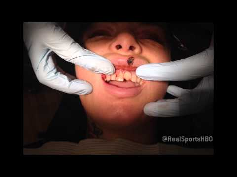 Christy Mack's Reconstructive Dental Work: Real Sports Bonus Clip (HBO)