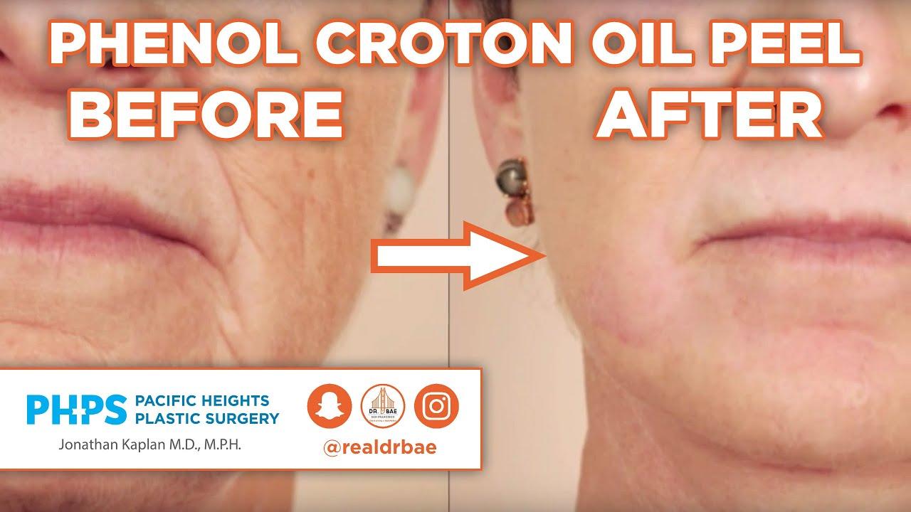croton oil peel