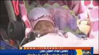 نوزاد300گرمی سومین نوزاد کم وزن جهان