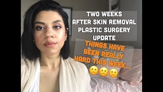 Excess skin removal surgery | Two week update