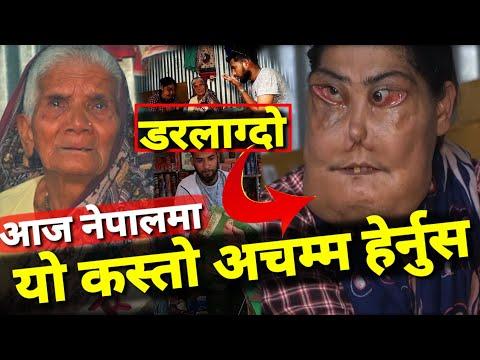 काठमाडौको पशुपति छेउमा हेर्नुहोस... 36 बर्ष देखि यस्तो तुरुन्तै हेर्नुहोला Bhagya Neupane Help Video