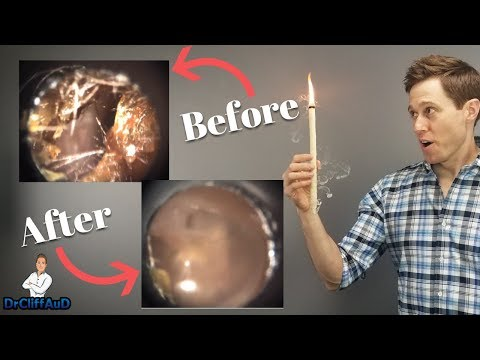 Do Ear Candles Work To Remove Earwax? | Ear Candling Proof!